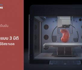 บริษัทอเมริกายืนยันเริ่มพิมพ์ไตแบบ 3 มิติด้วยเทคโนโลยีอิสราเอล